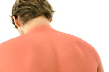 Sunburn Back